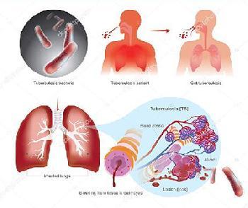 Starnieuws Tuberculose Blijft S Wereld Dodelijkste Infectieziekte